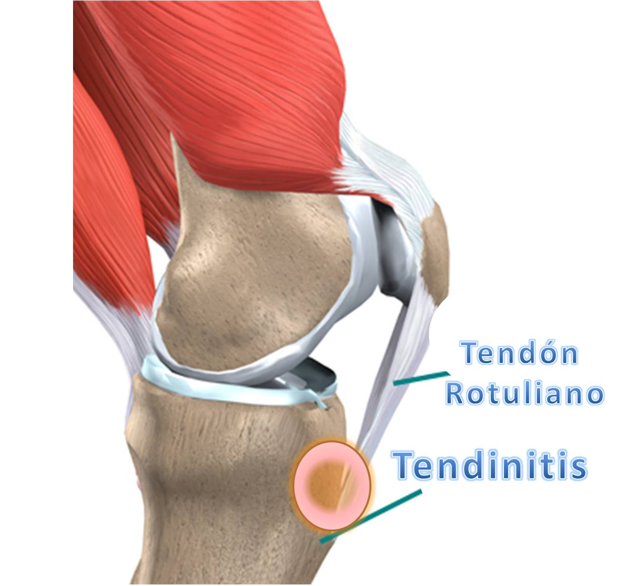 LA TENDINITIS ROTULIANA