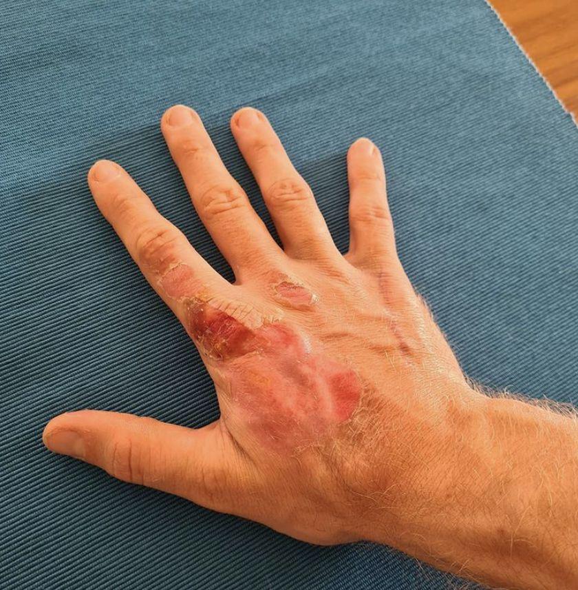 La mano de Grosjean después del accidente