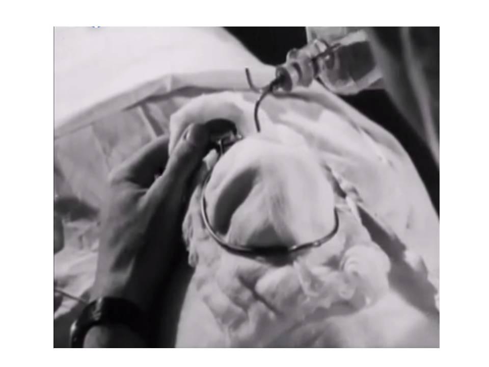 El uso del Éter como anestesia