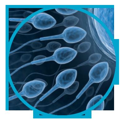 ¿Qué es un espermograma?